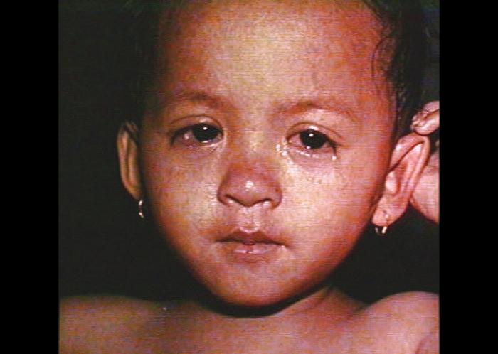 Child with measles (Barbara Rice / CDC)