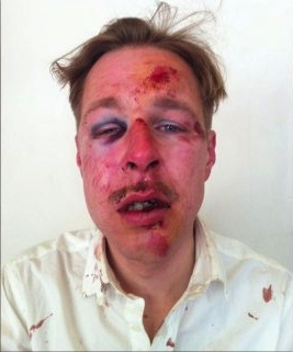 This picture of Wilfred De Bruijn after being assaulted near his Paris home have raised concerns over violence against homosexuals (Wilfred de Bruijn / Facebook)